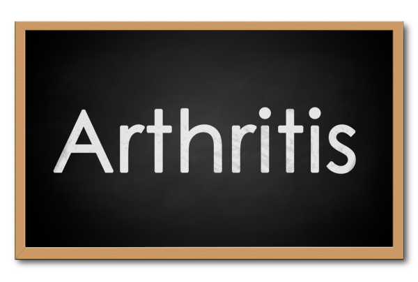 Living Well: Maintaining Mobility with Arthritis