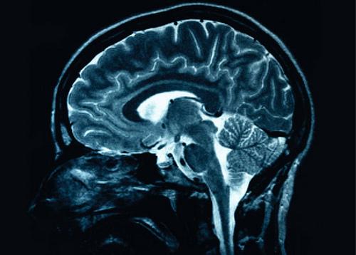 Traumatic Brain Injury and Alzheimer's in Senior Living