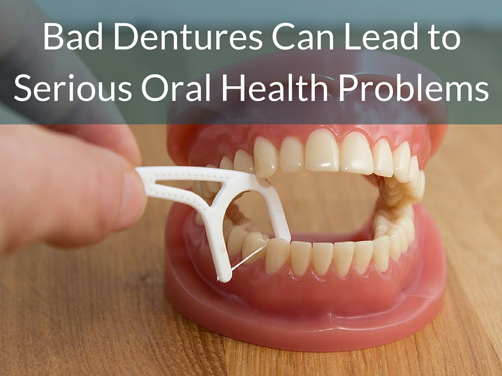 Bad Dentures Can Lead to Serious Oral Health Problems