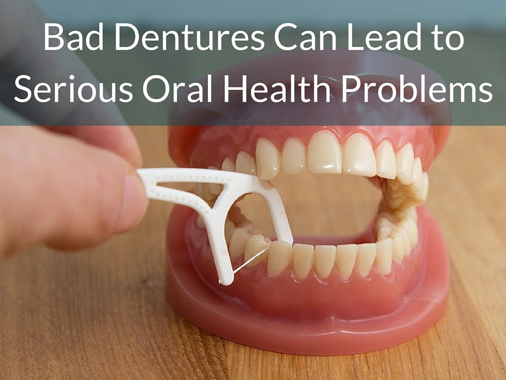 Bad dentures pictures